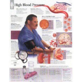 High Blood Pressure Chart Wall Chart Scientific