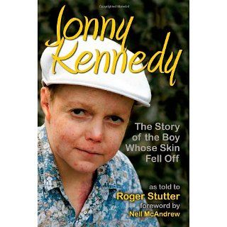 Jonny Kennedy The Story of the Boy Whose Skin Fell Off